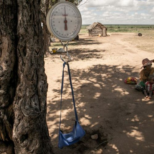 A baby scale hangs on a tree branch during a malnutrition screening session in Ifotaka, southern Madagascar. RIJASOLO/AFP via Getty Images